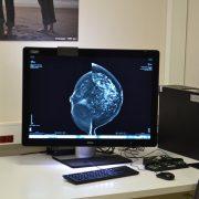 rak dojke mamograf kc niš